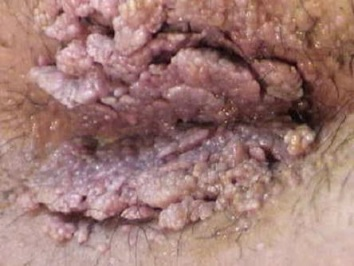 penyebab kutil kelamin